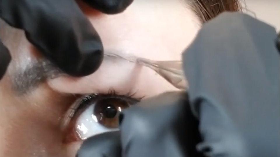 Uklanjanje tetovaže